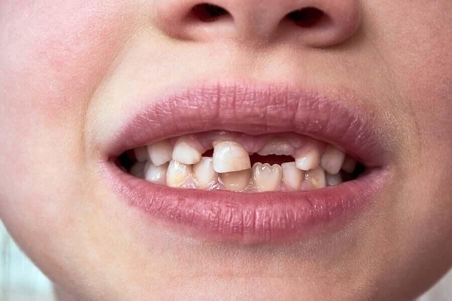 Dentes de leite das crianças
