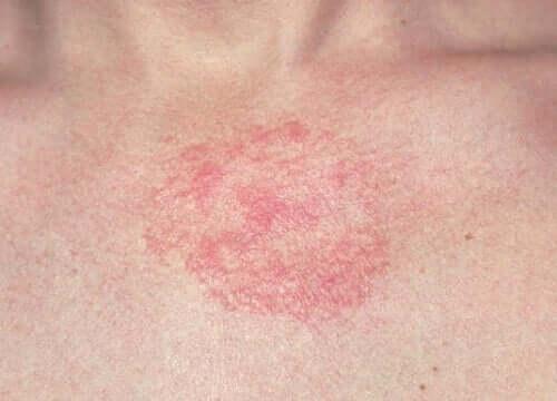 A betametasona é muito utilizada para dermatites