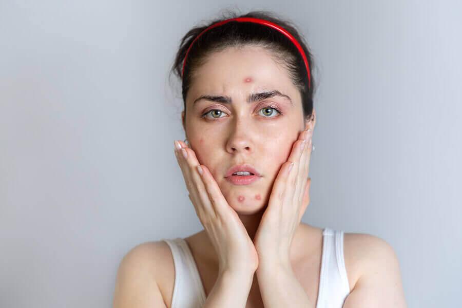 Mulher com acne no rosto