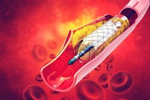 O que é um stent e para que serve?