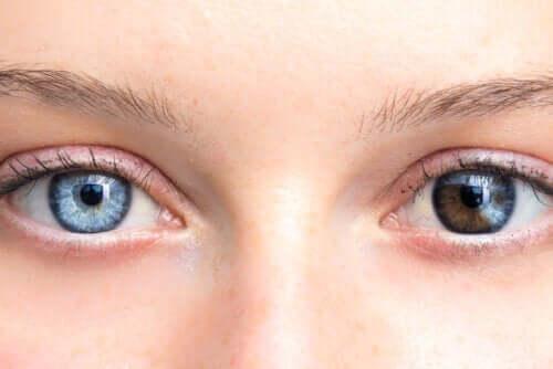 As mudanças na cor dos olhos são preocupantes?