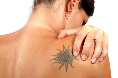 É possível remover tatuagens?