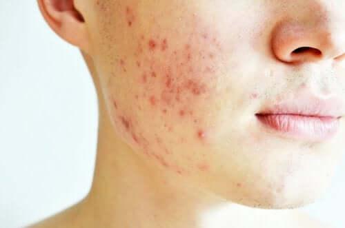Características da acne cística