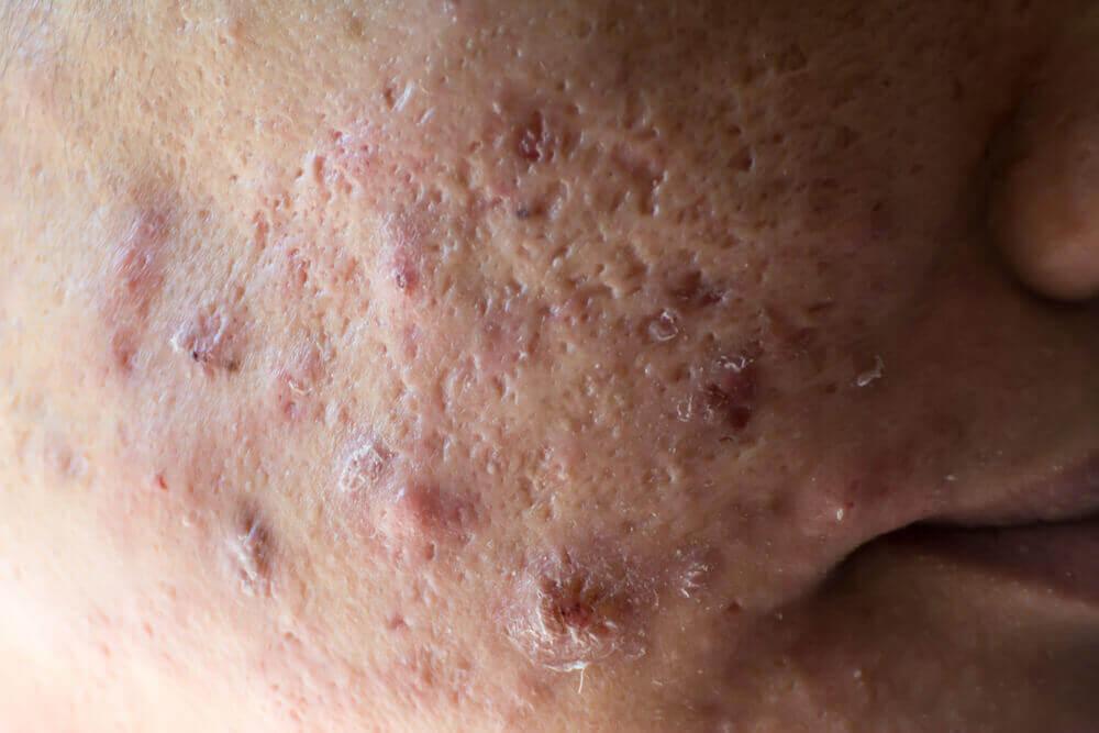 Pessoa com acne cística