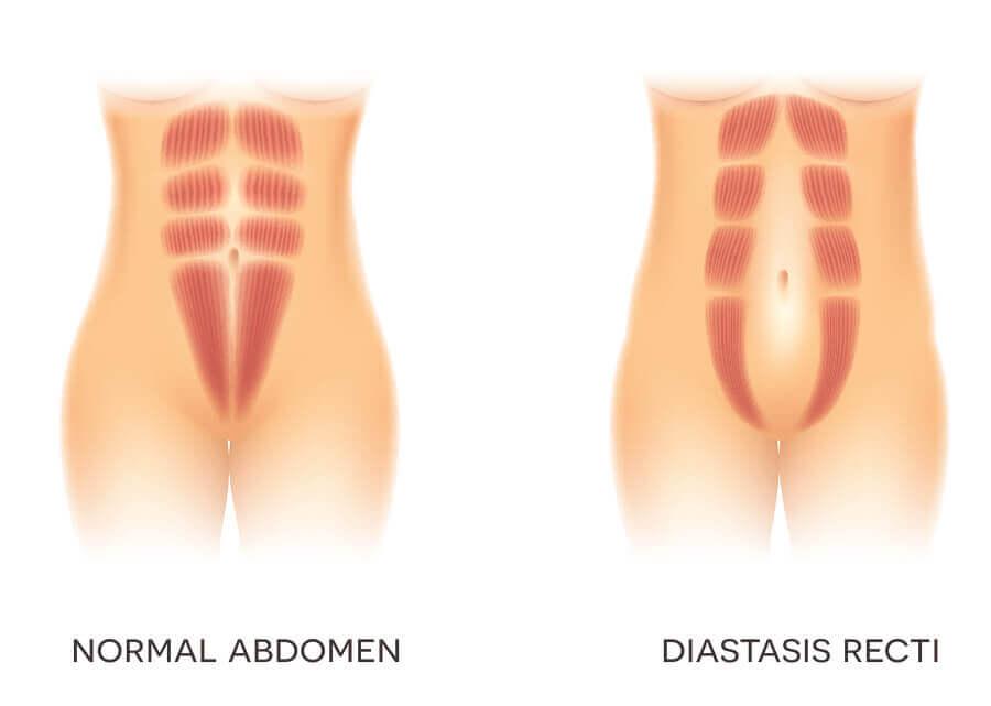 Abdômen normal e com diástase