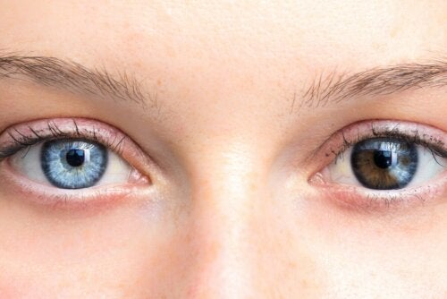 Olhos de cores diferentes