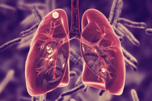 O que é a tuberculose pulmonar e quais são os seus sintomas?