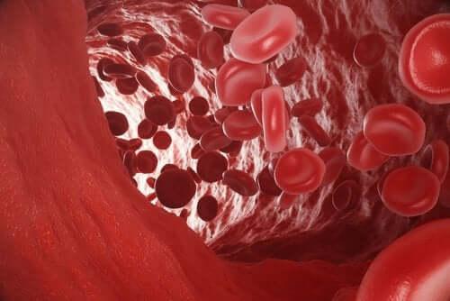 O que é a hipoxemia arterial?