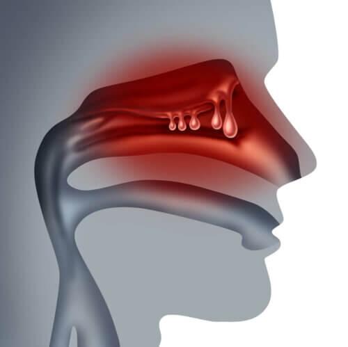 Presença de pólipos no nariz