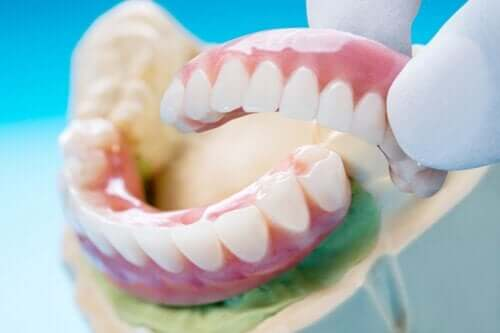 Ponte dentária: tipos, vantagens e desvantagens