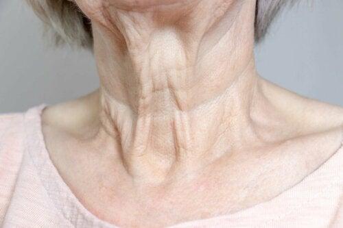 Rugas no pescoço