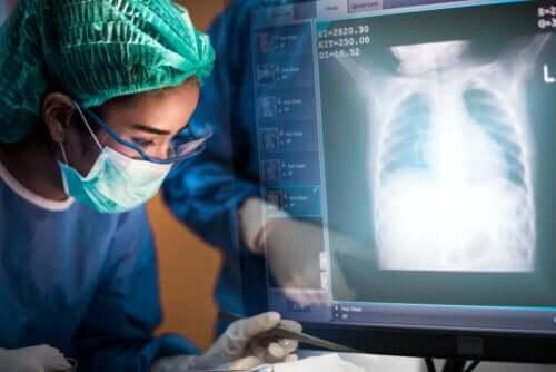 Transplante de pulmão: tudo que você precisa saber