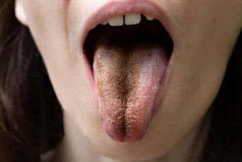 Língua negra pilosa: causas, sintomas e orientações