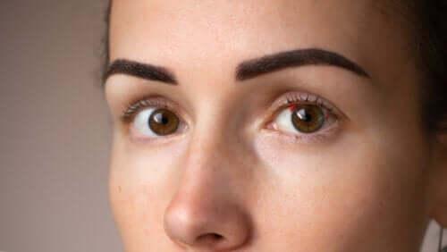 Manchas vermelhas nos olhos: tudo que você precisa saber