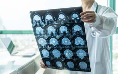 O diagnóstico precoce da encefalite pode salvar vidas