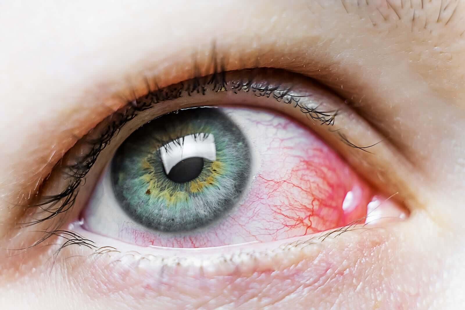 Manchas vermelhas nos olhos