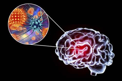 Encefalite: sintomas, causas e tratamento