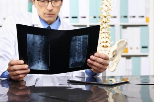 Quando é necessário operar uma hérnia de disco?