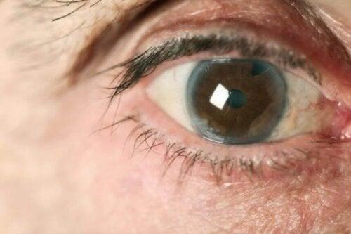 Olho com um dos tipos de glaucoma