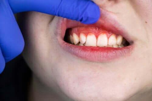 Boca de trincheira: origem, sintomas e tratamento
