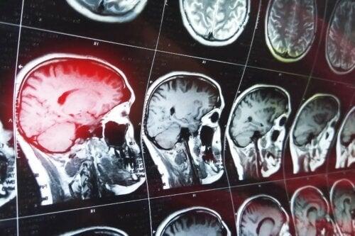 Exames de imagem do cérebro