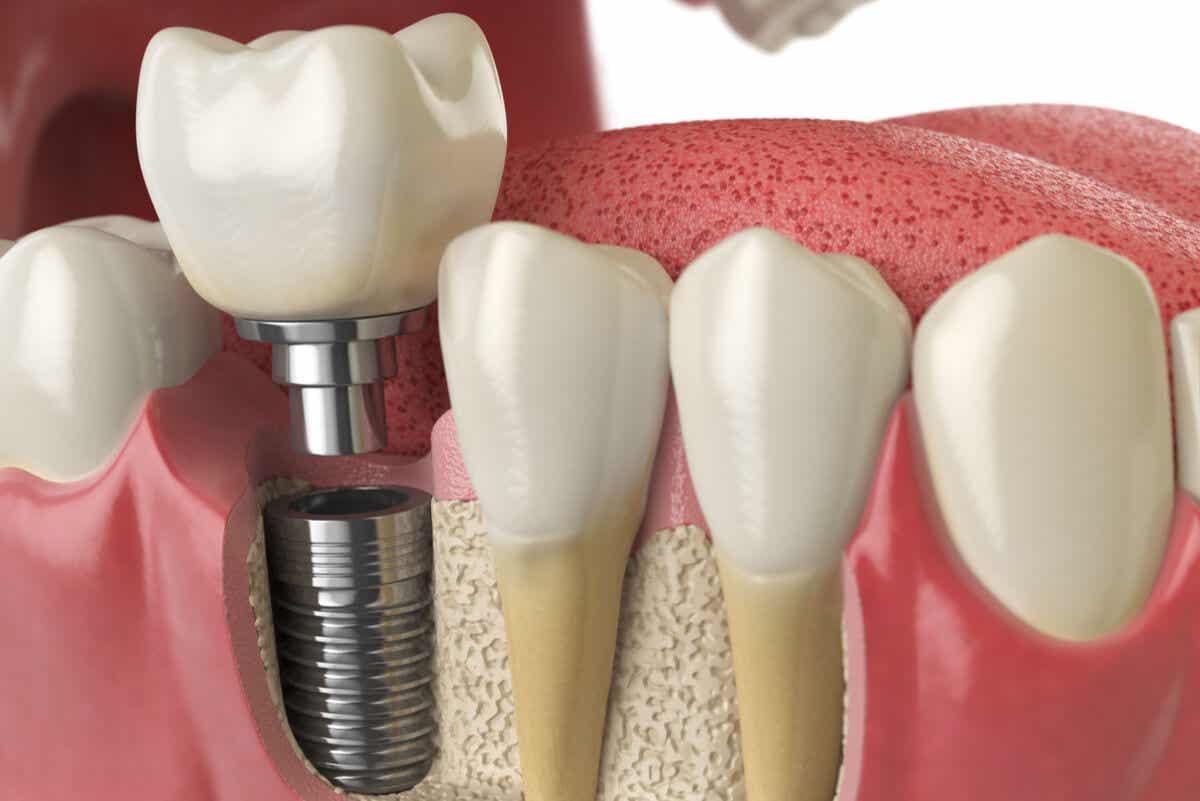 Tipos de próteses sobre implantes dentários e seus benefícios