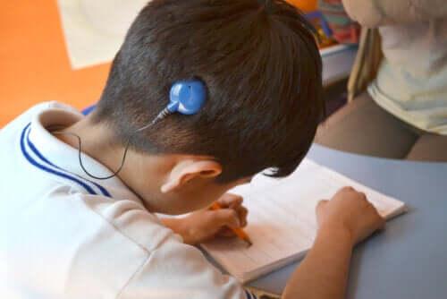 Dia Internacional do Implante Coclear: tudo que você precisa saber