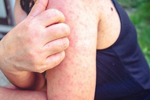 Irritação da pele