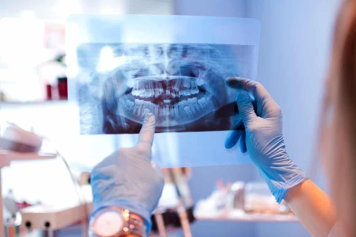 Radiografia dos dentes