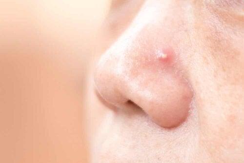 Espinha no nariz