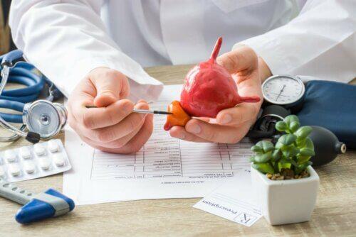Médico mostrando próstata
