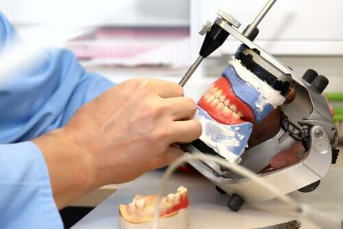 Próteses sobre implantes dentários: o que são e que tipos existem?