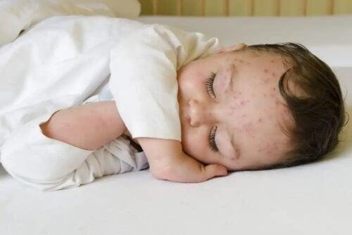 Bebê com catapora