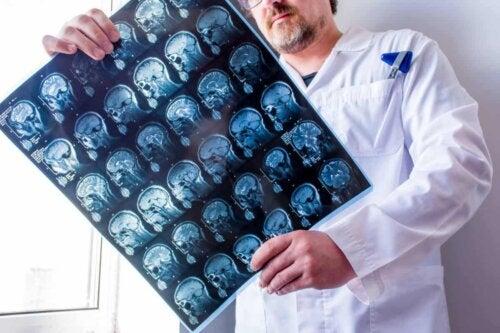 Tomografia computadorizada do cérebro