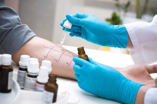 Testes de alergia