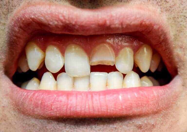 Traumatismo dentário: o que é e quais tipos existem?