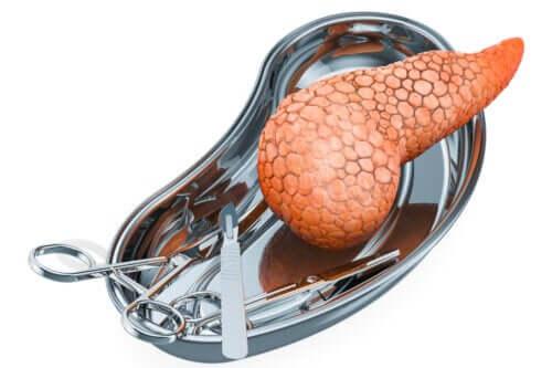 Transplante de pâncreas: por que é realizado e quais são os riscos?
