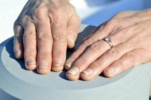 Como cuidar das unhas com psoríase?