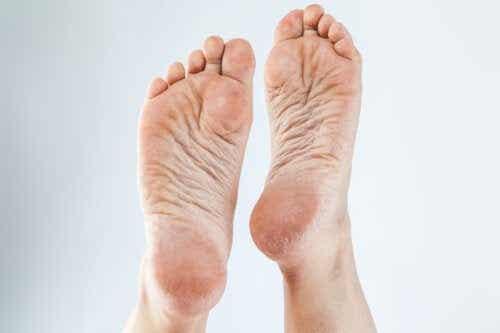 3 cremes naturais para remover calos dos pés